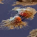 cellules cancéreuses sous un microscope