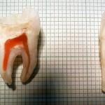 dent-humaine