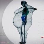 radio obese