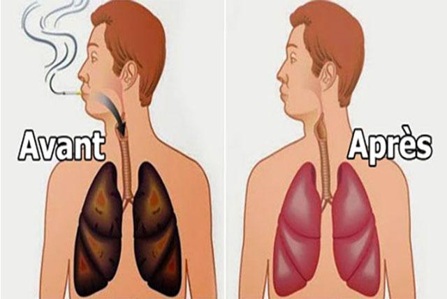 poumons fumer avant après